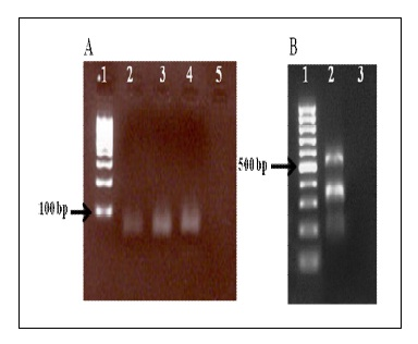 Simple and Accurate Detection of Vibrio Cholera Using Triplex Dot Blotting Assay